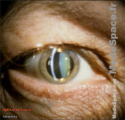 cataracts_x220.jpg