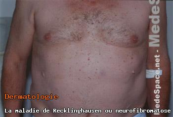 maladie de recklinghausen